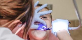 Lakowanie zębów - co to jest lakowanie zębów