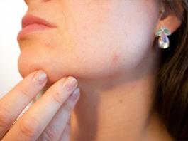 Jak pozbyć się trądziku – skuteczne domowe sposoby na trądzik